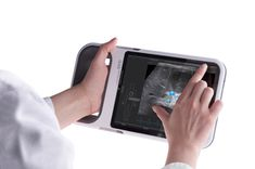 Sono, Mobile Medical Imaging Device / Hannes Harms