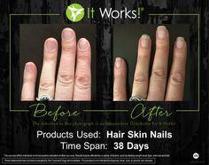 Best Hair Vitamins, Vitamins For Hair Growth, Hair Skin Nails Itworks, My It