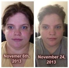My name is Jillian, and I am deaf! I suffer with a few crazy health issues!  I have PCOS, PSTD, and overweight!  when I first heard about Skinny Fiber,... Read more here: https://www.facebook.com/sarahsmynewbody  order yours today! www.LetsgoSkinny.com