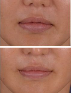 One of the best mouth corner lifting and lip reduction surgery ever http://blog.naver.com/kiaps1/220021460744