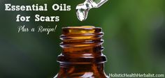 There are many essential oils for scars that are potent and effective. I will teach which ones I think are the best choice for smoothing, fading, and healing scars.
