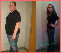 56 Best Bariatric Before And Afters Images Weight Loss Journey
