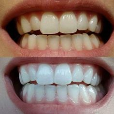 Best whitening toothpaste of my life! Best Whitening Toothpaste, Coffee Staining, Beauty Advice, Ingrown Hair, Dental Health, Anti Aging Skin Care, How To Feel Beautiful, Skin Care Tips, How To Look Better
