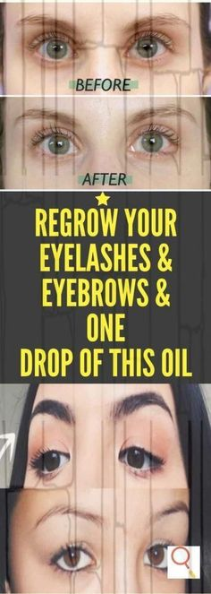 This DIY serum will make your eyelashes and eyebrows thicker in just 3 days!, This DIY serum will make your eyelashes and eyebrows thicker in just 3 days! Serum, Castor Oil Eyelashes, Personal Beauty Routine, Castor Oil Benefits, Dark Eyebrows, Bald Patches, Plucking Eyebrows, Eyelashes