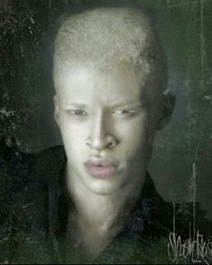 {}MR. SHAUN ROSS THE FIRST AFRICAN AMERICAN ALBINO MODEL YOU GO{} Albino Model, Shaun Ross, Chocolate Men, Albinism, Storyboard, Role Models, Supermodels, African, Artwork