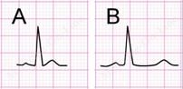 ECG signs of hypercalcemia and hypocalcemia may not be obvious even in patients who have deranged plasma calcium concentrations that are clinically significant. If they are present, hypercalcemia is associated with short QT interval (A) and hypocalcemia with long QT interval (B). Interval shortening or lengthening is mainly in the ST segment.