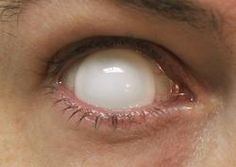 I can't help but geek out and think these are decently awesome!     Site to buy them: http://www.wishwall.me/c/white-contact-lenses-4f731f1fbc45764431033399?p=contextlogic_id=fb_white-contact-lenses_friends=1