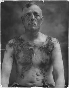 John Meintz who was tarred and feathered for not supporting war bond drives, ca.1917-18