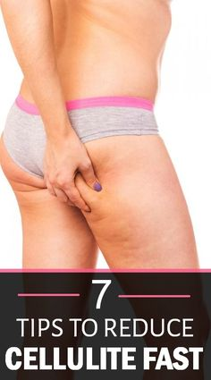 7 TIPS TO REDUCE CELLULITE FAST