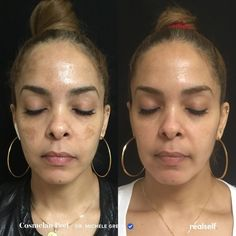 Cosmelan is a chemical peel system that treats hyperpigmentation issues, such as irregular skin tone, dark spots, acne scars, and melasma. Chemical Peel At Home, Cosmetic Procedures, Acne Scars, Dark Spots, Cosmetology, Dark Skin, Good Skin, Healthy Skin, Skin Care