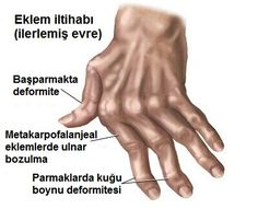 Watch This Video Proven Homemade Remedies for Arthritis and Joint Pain Ideas. Staggering Homemade Remedies for Arthritis and Joint Pain Ideas. Rheumatoid Arthritis Hands, Herbs For Arthritis, Arthritis Causes, Reactive Arthritis, Prevent Arthritis, Yoga For Arthritis, Natural Remedies For Arthritis, Juvenile Arthritis, Rheumatoid Arthritis Treatment