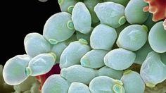 L'allarme dei medici   La candida uccide più del cancro: funghi killer, la nuova invasione - http://www.sostenitori.info/lallarme-dei-medici-la-candida-uccide-piu-del-cancro-funghi-killer-la-nuova-invasione/257228