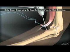 Distal Biceps Repair Animation