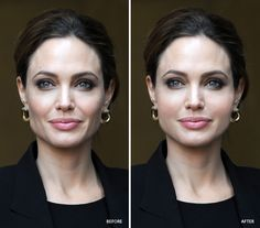 If you've lost volume with age, like #celebrity #Angelina #Jolie, you may want to consider facial implants to return facial youth. Available at #COFS