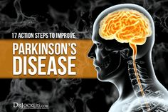 Parkinson's disease is progressive neurological degenerative state. Discover true natural solutions and 17 action steps to improve Parkinson's disease Disease Symptoms, Autoimmune Disease, Parkinson's Disease, Parkinsons Exercises, Parkinson's Dementia, Invisible Illness, Brain Health, Natural Solutions, Alzheimers