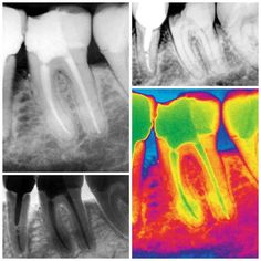 #Endodontics #Endodoncia #RootCanal #Endodontia #Endo #Root #Dentistry #Odontologia #Dentist Endo - primer molar inferior izquierdo by drjcrespo Our Root Canals Page: http://www.myimagedental.com/services/general-dentistry/root-canals/ Other General Dentistry services we offer: http://www.myimagedental.com/services/general-dentistry/ Google My Business: https://plus.google.com/ImageDentalStockton/about Our Yelp Page: http://www.yelp.com/biz/image-dental-stockton-3 Our Facebook Page…