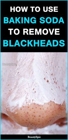 How To Use Baking Soda For Blackheads