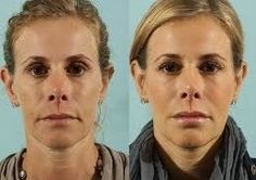 Facial Building Exercises
