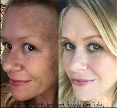 JUST amazing! This is what Reverse AMP MD Roller Lash Boost looks like. What are you waiting for? You deserve the best! Msg me to get started on your journey Amp Roller, Rodan And Fields Reverse, Aging Backwards, Radiant Skin, Flawless Skin, Skin Care Regimen, Anti Aging Skin Care, Real People, Health