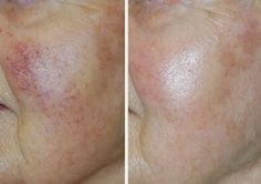 VariLite Laser Treatment #even #skin #tone #improve #aging #skin #varilite #laser #treatment #marionette #lines #wrinkles #face #juvederm #cosmetic #plastic #surgery #rhinoplasty #facelift #facial #beauty #surgeons #lake #oswego #portland #oregon #tricities #washington @DrLeeRobinson