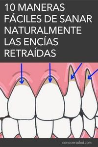 La recesión de las encías es el término médico que describe cuando el margen del tejido de las encías que rodea al diente se retira, exponiendo más del diente o su raíz. Las encías que se retraen pueden producir huecos notables, lo que facilita la acumulación de bacterias causantes de enfermedades. Si no se trata, el tejido de soporte y las estructuras óseas de los dientes pueden resultar gravemente dañados y, en última instancia, pueden provocar la pérdida del diente. El retroceso de las… Health And Beauty, Health And Wellness, Health Fitness, Body Hacks, Dental Health, Natural Medicine, Dentistry, Health Remedies, Excercise