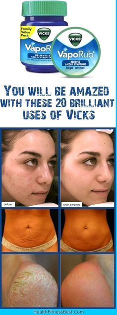 Vicks VapoRub is commonly used in the treatment of headaches, cold, cough, stuffy nose, throat and chest. We have some more good news for you. Vicks VapoRub is even more powerful than this.put-some…