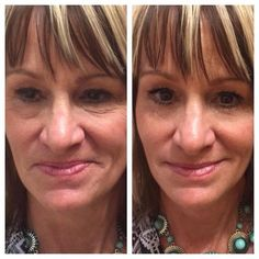 Wow AMAZING results!! So exciting to see Instantly Ageless working like MAGIC.  Www.lustriousbeauty.jeunesseglobal.com