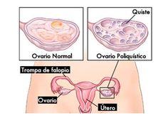 remedio casero para combatir los ovarios poliquísticos Esto puede provocar problemas de fertilidad en las mujeres por ello debe de ser tratado a tiempo