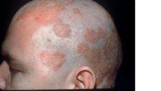 Seboreik Dermatit Hastaligindan Nasil Kurtuldum Anlatmak Istiyorum