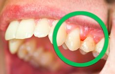 Best Home Remedies for Gingivitis If you had a tooth infection and also having so much pain, then do not worry. Here we share some easy naturalhome remedies for a tooth infection. This type of infecti Home Remedies, Natural Remedies, Tooth Infection, Loose Tooth, Gum Health, Health Tips, Oral Health, Dental Health, Natural Treatments
