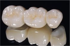 #Hadihofmann #DentalService in #Dubai – We provides the dental treatment & dental care necessary to secure, and maintain, the health of your mouth and teeth. Implant Dentist, Dental Implant Surgery, Teeth Implants, Dental Teeth, Dental Care, Emergency Dental Treatment, Happy Dental, Dental Bridge Cost, Wisdom Teeth Funny