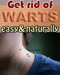 Get rid of warts easy and naturally