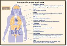 health problems associated with anorexia nervosa
