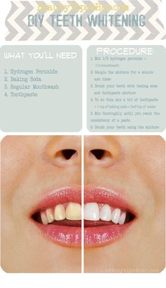 Beauty How-To's: Whitening your Teeth w/ hydrogen peroxide, baking soda, mouthwash, and toothpaste Diy Beauté, Diy Crafts, Easy Diy, Sell Diy, Decor Crafts, Beauty Hacks For Teens, Beauty Ideas, Teeth Whitening Diy, Instant Teeth Whitening
