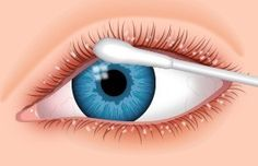 Eyelid Care for Dry Eye Treatment