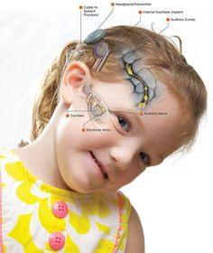Cochlear implants bring back the sense of hearing as naturally as it can get. We are providing cochlear implant at an affordable cost. We deal with nose, ear, throat, neck and head problems in children. Get in touch to take the best treatment. Brain Anatomy, Human Anatomy, Deaf Quotes, Hearing Impairment, Surgery Center, Learn Programming, Skills To Learn, Deep Learning, Hearing Aids