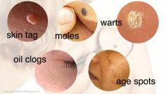 Como quitar naturalmente, verrugas, espinillas y manchas de la piel.
