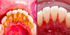 Como Remover a Placa dos BacterianaDentes em Apenas 1 Minutode forma simples e 100% natural. Além disso,aplaca bacteriana dos dentesé um problema que atinge muitas pessoas em todo o mundo, logo porque o sorriso é uma parte muito importante da nossa personalidade. E amá higiene oral pode trazer problemas desagradáveis e aumentar o risco do aparecimento daplaca dos dentesembora algumas pessoas são geneticamente predispostas a ela. AS MELHORES RECEITAS DE MARÇO- 2018: 1 - 101 RECEITAS…