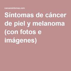 Síntomas de cáncer de piel y melanoma (con fotos e imágenes)