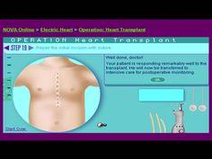"NOVA site- ""Operation Heart Transplant"""
