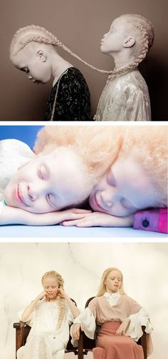 "Sisters with albinism // ""We feel albinism is pretty, we love our hair, eye color and skin tone."""