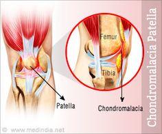 Chondromalacia Patella/ Runner's Knee