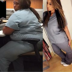17 Advice on Fast Weight Loss Program Before And After Weightloss Pics, Weight Loss Before, Fast Weight Loss, Weight Loss Program, Healthy Weight Loss, Weight Loss Journey, Weight Loss Tips, Diet Program, Fitness Transformation