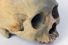 UB_Skull1_6.jpg