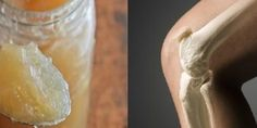Si usted sufre de dolor de espalda, dolor en las articulaciones, piernas y cuello, esta receta es ideal para usted.Su ingrediente principalestimula la actividad generativa de los huesos. Anuncios Se trata de la gelatina, quees un gel , incoloro, translúcido, e insípido, que se obtiene a partir del colágeno procedente del tejido conectivo de animales …