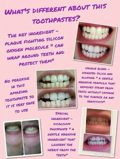 all new whitening toothpaste works for smokers anybody it is proixed free contact me for finner detail at 0722797154