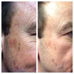 NeriumAD is THE only company that asks their customers to take before and after shots of their skin.  There is a reason for that...because it really does work! Contact me for more info. Mrsschraut@gmail.com Www.youngnskin.nerium.com