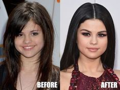 Selena Gomez Plastic Surgery rumors include breast implants, lip injections, and nose job. Let's take a closer look at the before and after photos and decide! After riding into fame with her beautiful Selena Selena, Selena Gomez, Korean Nose Job, Blake Lively, Celebrities Before And After, Celebrity Plastic Surgery, Under The Knife, Cosmetic Treatments, Lip Injections