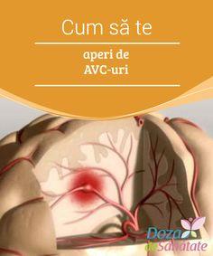 Cum să previi un accident vascular cerebral - Doza de Sănătate
