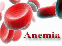 Die Blutarmut wird eine reduzierte Anzahl von roten Blutkörperchen , geringe Hämoglobin ( HGB) und / oder die Menge der roten Blutzellen im Blut ( Hämatokrit) , und das ist der Grund , warum es keine ausreichende Menge an Sauerstoff im Gehirn , Herz, Muskeln und anderen Teilen des Körpers.Anämie kann durch zu viel und verlängerte Blutung , Mangel an Vitamin B12 oder Folsäure, Störung bei der Reifung der roten Blutzellenals auch eine erhöhte oder beschleunigte Zersetzung der roten Blutzellen